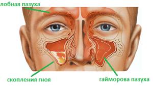 Лечение при обострении гайморита
