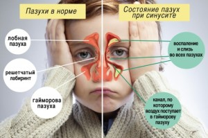 Sinusit-u-detej