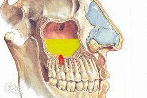 Воспаление верхнечелюстной пазухи: фото