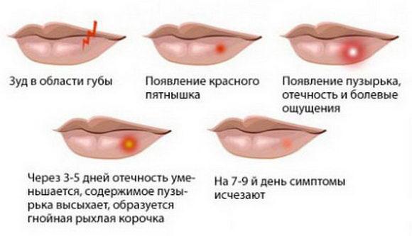 Симптомы простуды на губах