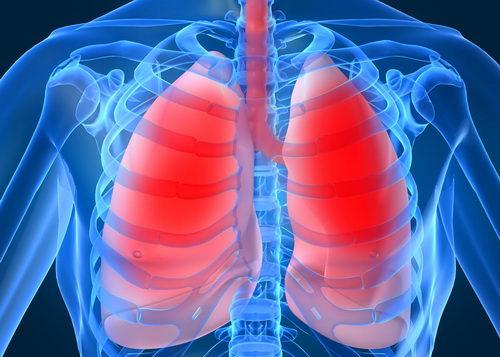 Пневмония - заболевание, сопровождающиеся кашлем